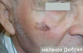 фото меланоз дюбрея