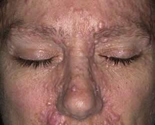 Симптомы вируса папиллома человека
