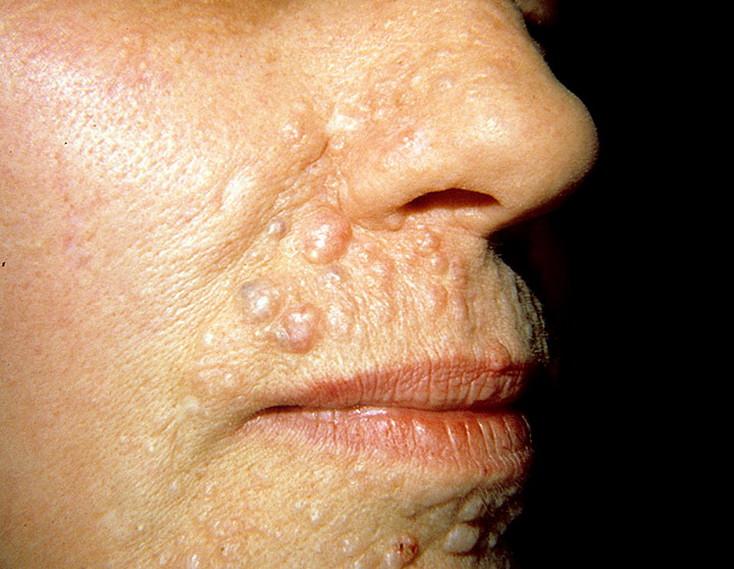 Эпителиома фото