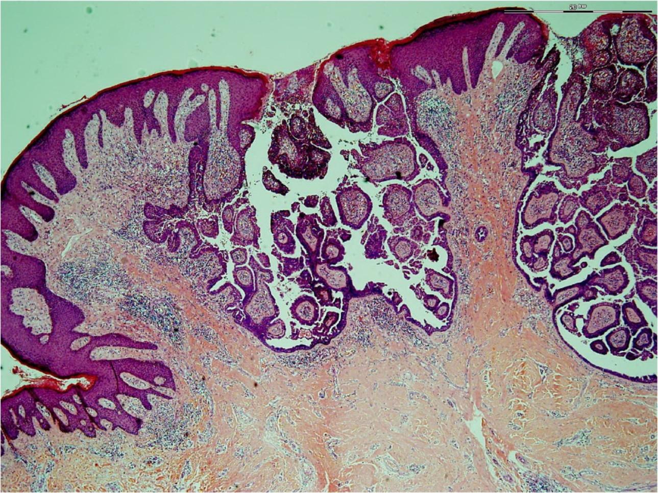 Папиллярная сирингоаденома
